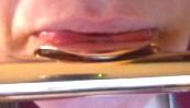 Better lower lip formation